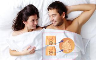 Чем опасен ВПЧ для мужчин и женщин