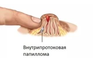 Лечение внутрипротоковой папилломы молочной железы.