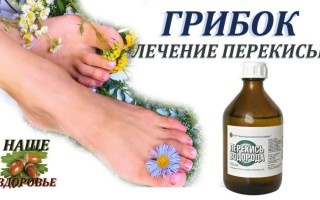 Лечение грибка ногтей перекисью водорода