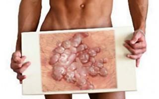 Кондиломы на половом члене — виды, лечение, причины