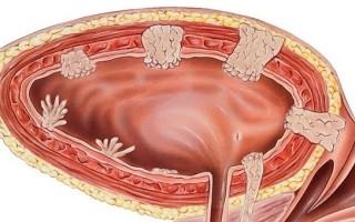 Папиллома мочевого пузыря: методы лечения, симптомы