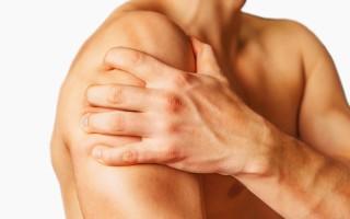 Папиллома на плече: диагностика, фото
