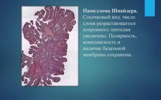 Папиллома шнейдера: переходно-клеточная папиллома носа.