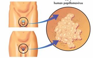 Как проявляется ВПЧ у мужчин и женщин