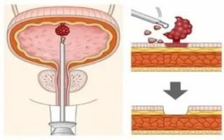 Кондиломы уретры