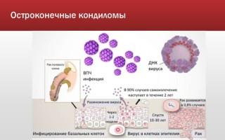 Могут ли кондиломы вызывать рак