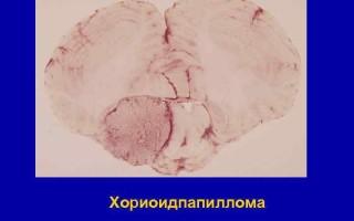 Хориоидпапиллома – симптомы и лечение атипичной кисты