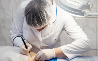 Кондиломы: к  какому врачу обратиться