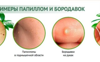 Виды папиллом на теле