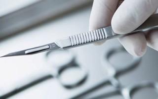 Как происходит хирургическое удаление папилломы?