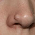 Чем отличается фиброма от папилломы — лечение
