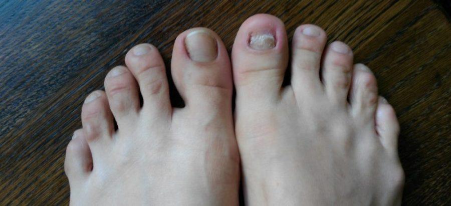 Лечение грибка ногтей лазером. Отзывы, цена
