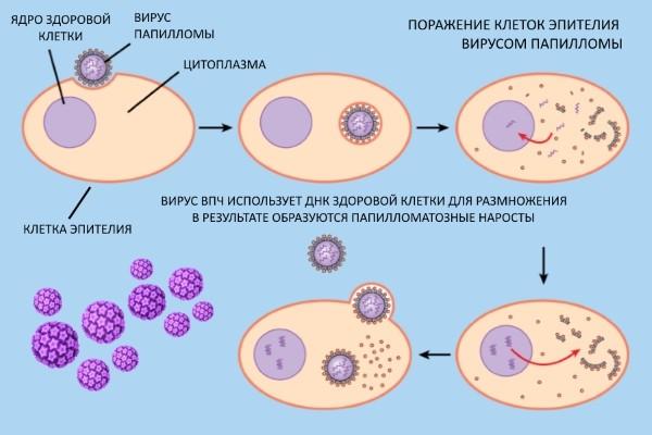 Опасен ли вирус папилломы человека у женщин в гинекологии