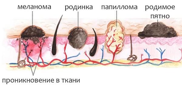 Процедура удаления папиллом с помощью Сургитрона