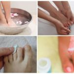 Как избавиться от грибка ногтей в домашних условиях