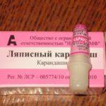 Ляписный карандаш от папиллом: состав, инструкция, цена, отзывы