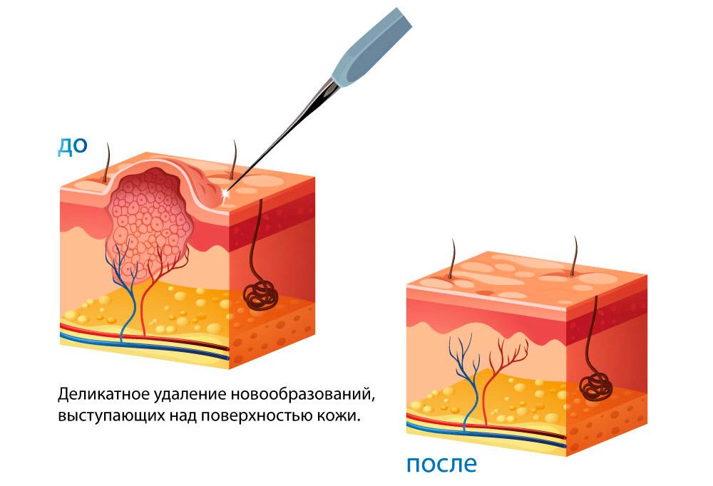 Удаление родинок радиоволновым методом: аппарат Сургитрон, как используется радионож в хирургии? Чем лучше убирать: лазером или радиоволнами?  
