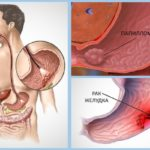 Папилломы в желудке: в чем опасность, методы диагностики и лечения