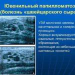 Ювенильный папилломатоз: что это, лечение