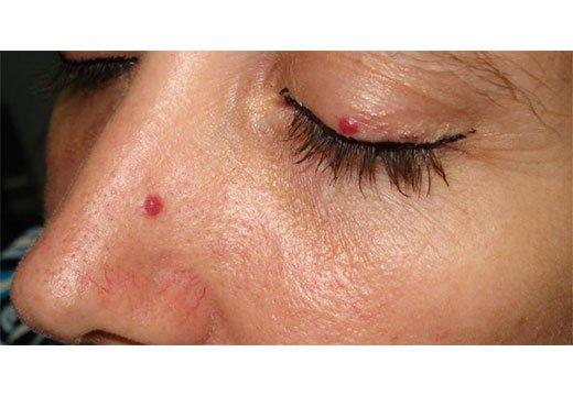 Удаление липомы лазером на лице, как убрать под глазами и на голове, как удалить жировик на теле, отзывы