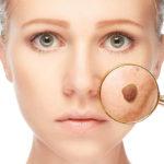 Как лечить бородавки на лице