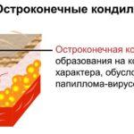 Что такое остроконечные кондиломы
